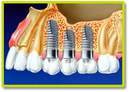 DENTAL IMPLANT AND IMPLANTS  THAILAND, Dental Implant and implants Bangkok  Thailand, Dental Implant Case By  Bangkok Dental Clinic Thailand